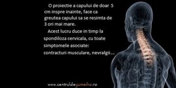 Semne de alarma cu privire la sanatatea coloanei vertebrale